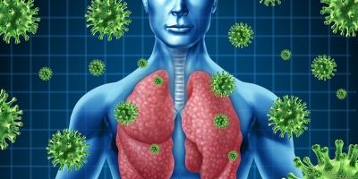 Como identificar diferenças entre Covid-19 e Pneumonia.